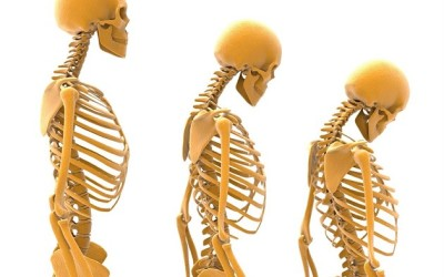 Světový den osteoporózy – 20. října